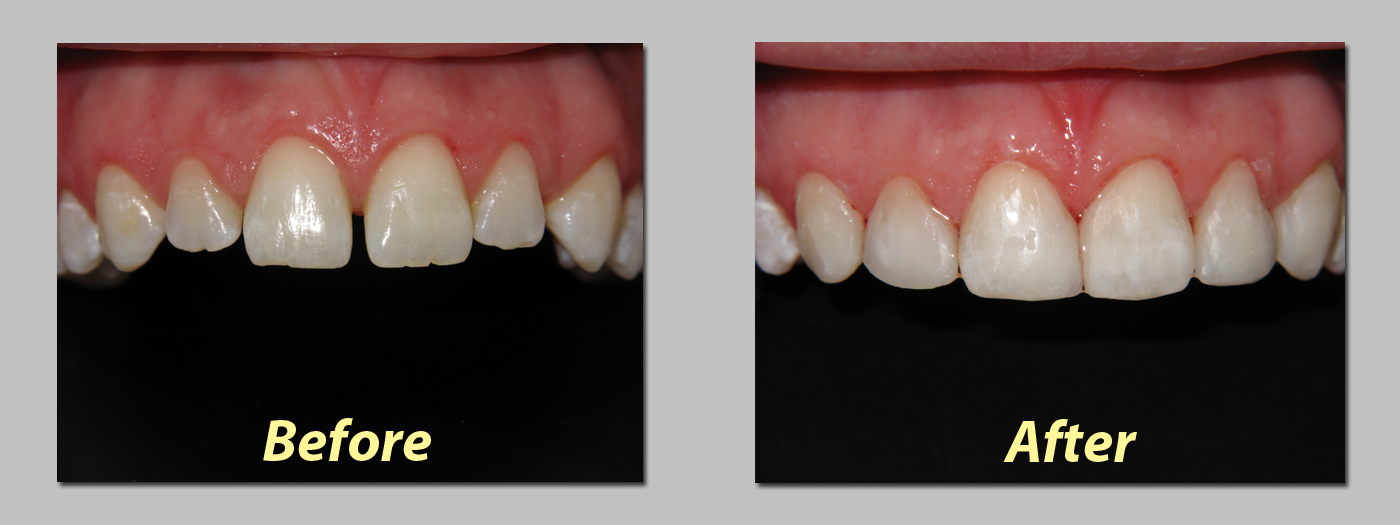 Minimally Invasive Cosmetic Filling (Light cure filling)