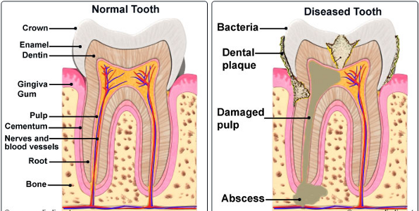 Root canal treatment (preserved tooth)