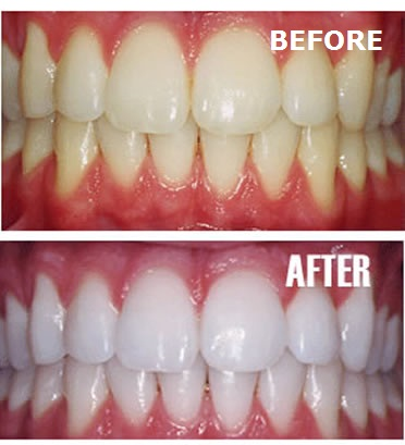 Scaling with polishing (cleaning your teeth)